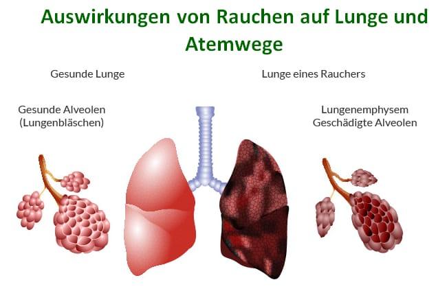 Auswirkungen von Rauchen