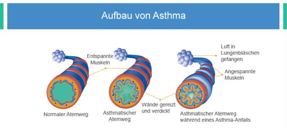 Asthma Aufbau